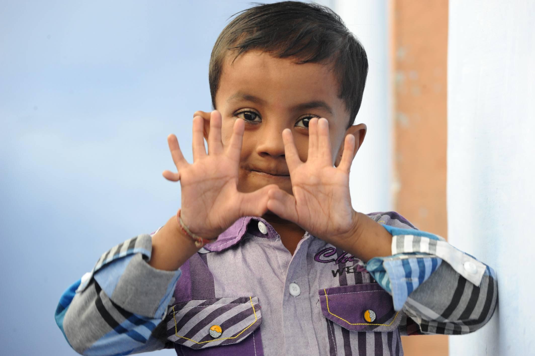 25 Fingered Boy